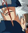 La blessure de Kakashi